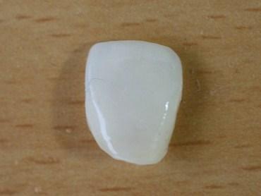 ラミネートベニア歯単体の写真・正面